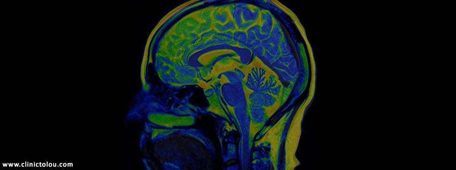 مصرف کوکائین و اختلال نوروپاتی