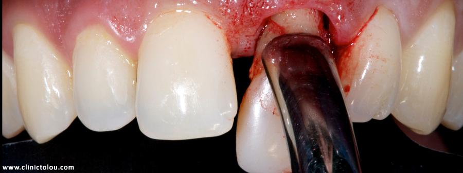 عوارض مصرف شیشه بر دندان